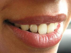 A fogínygyulladás tünetei és kezelése